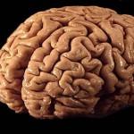 El cerebro: un mundo sorprendente. Foto Wikipedia Commons