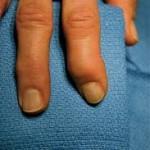 Artritis. Foto Flickr